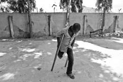 A la suite d'injections répétées et réalisées dans de mauvaises conditions sanitaires, des abcès peuvent se créer et s'infecter rapidement, entrainant certaines complications jusqu'à l'amputation. District de Temeke, Dar es-Salaam.