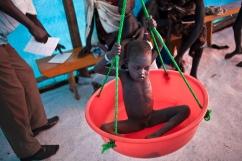Leitchor, région de Gambella, Ethiopie. Un enfant atteint de malnutrition sévère est suivi par l'ONG Action contre la Faim. Juin 2014.